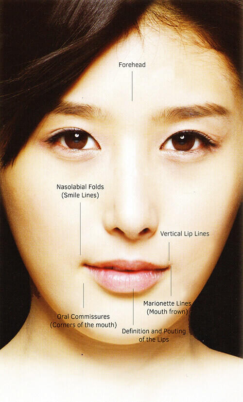 wrinkle reduction treatments malaysia