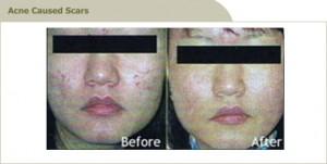 acne scar treatment clinic malaysia