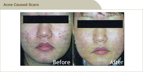 acne_2