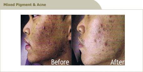 acne scar treatment clinic
