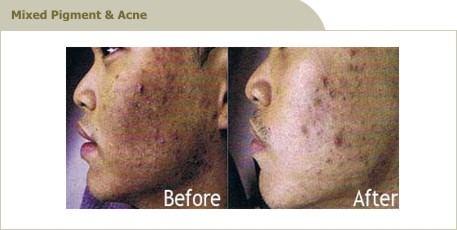 acne_4