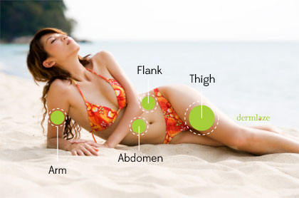 fat-grafting-areas