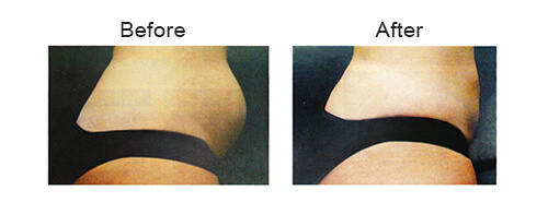 Best Fat Reduction in Malaysia