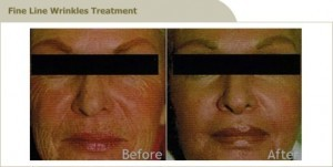 best anti-aging treatment in Malaysia