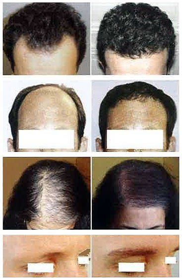 Hair implant in Malaysia