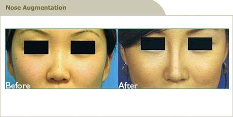 nose-augmentation