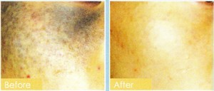 treatment for pigmentation Removal malaysia