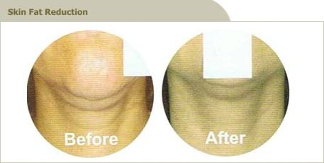 skin-fat-reduction