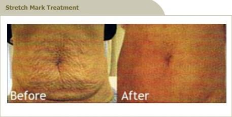 stretch mark treatment in Malaysia