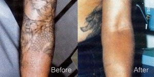 Laser Tattoo Removal services in Malaysia
