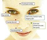 thumb-prp-dermatology-plastic-surgery