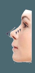 Ultra face V lift