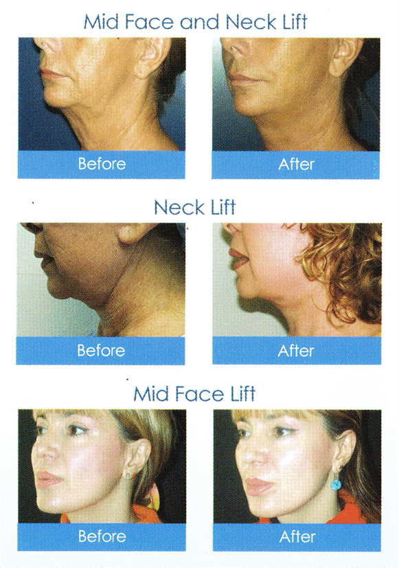 Non-Surgical & Safe Laser Facelift Malaysia - Visit Our
