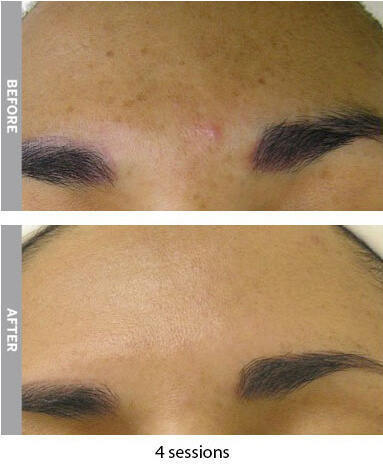 hyperpigmentation_revise