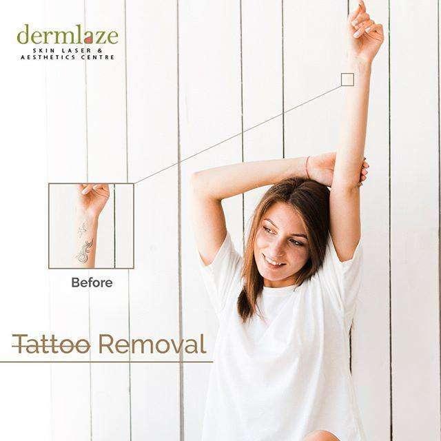 Laser Tattoo Removal Dermlaze Malaysia