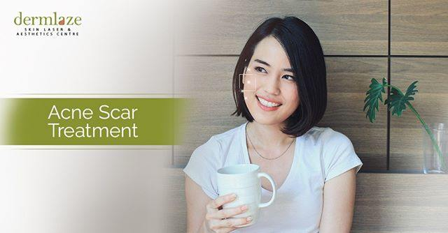acne scar treatment in Malaysia after laser