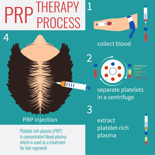 PRP hair loss treatment process in Malaysia