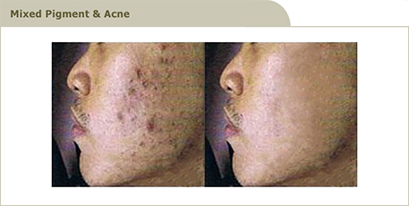 acne_4_R3