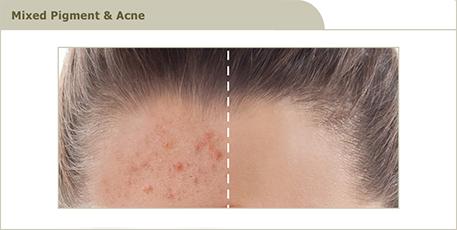 acne_5_R3