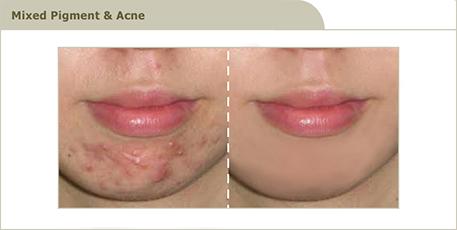 acne_6_R3