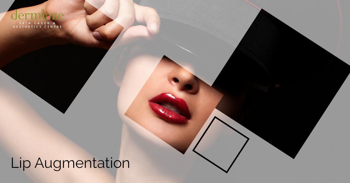 06Apr20_LipAugmentation_Dermlaze