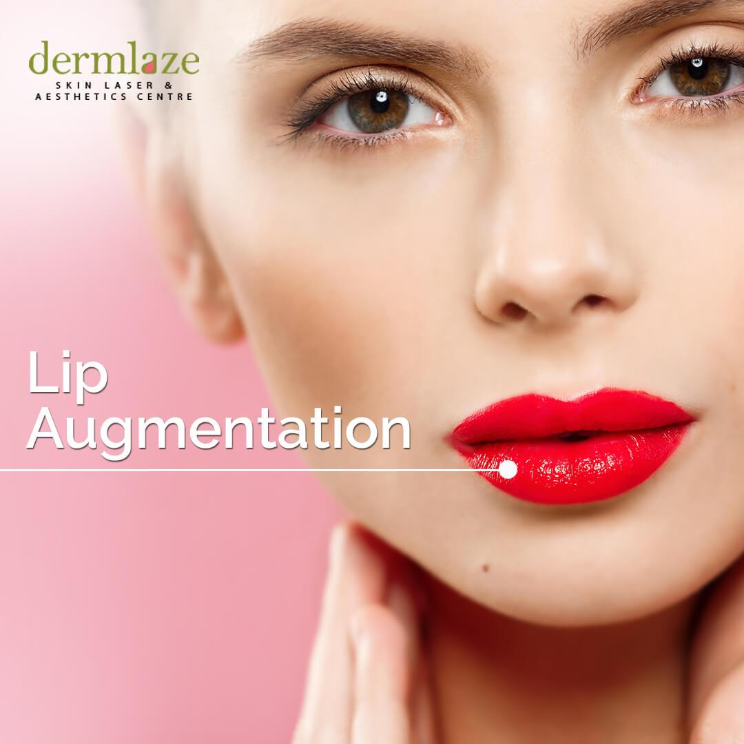 23May19_Dermlaze_LipAugmentation_Insta