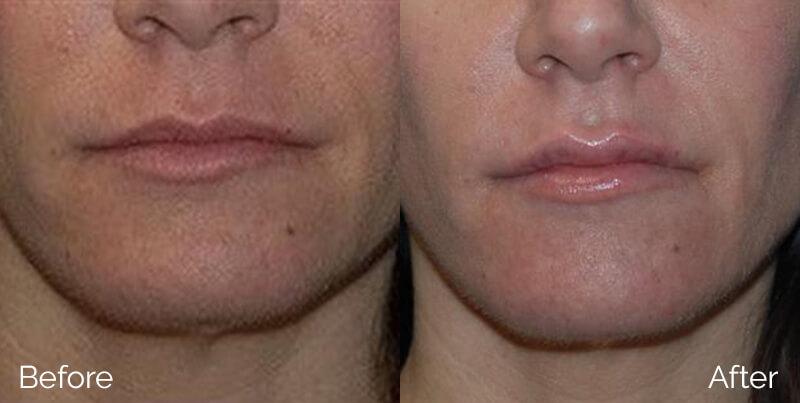 LipsAugmentation_01