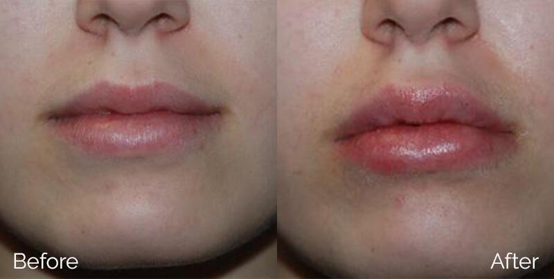 LipsAugmentation_02